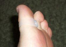 Магниты для похудения на пальцы ног – «эволюция» в мире похудения!