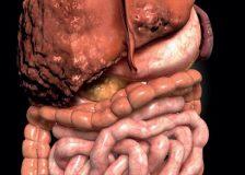 Рекомендованная диета при циррозе печени
