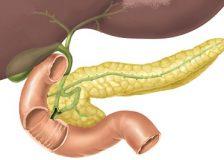 Питание при раке поджелудочной железы и его особенности